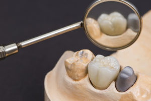 Dental-Crown-and-Crown-Preparation