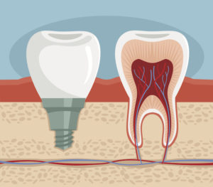 An illustrated cross section of a dental implant and a natural tooth