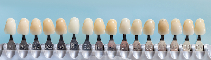 A dental shade guide showing natural colours of teeth