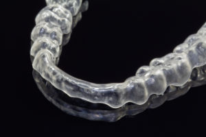 An example of an occlusal splint