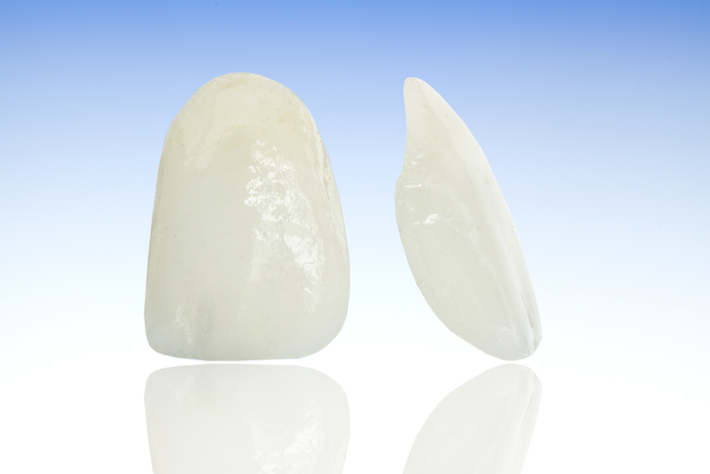 Porcelain veneers showing front and side profile