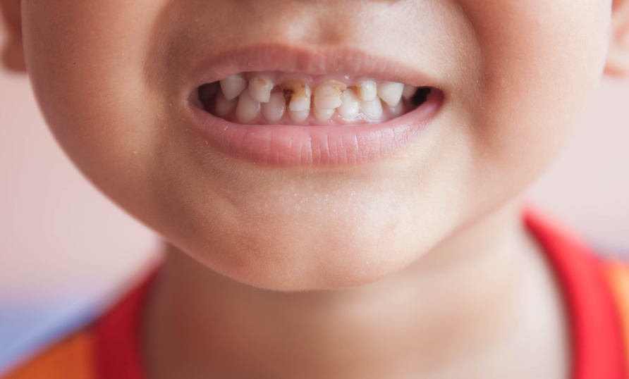 Ontario must address dental care for low-income kids ... |Decayed Toddler Teeth