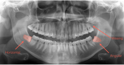 position of wisdom teeth