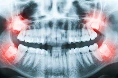 how-many-wisdom-teeth